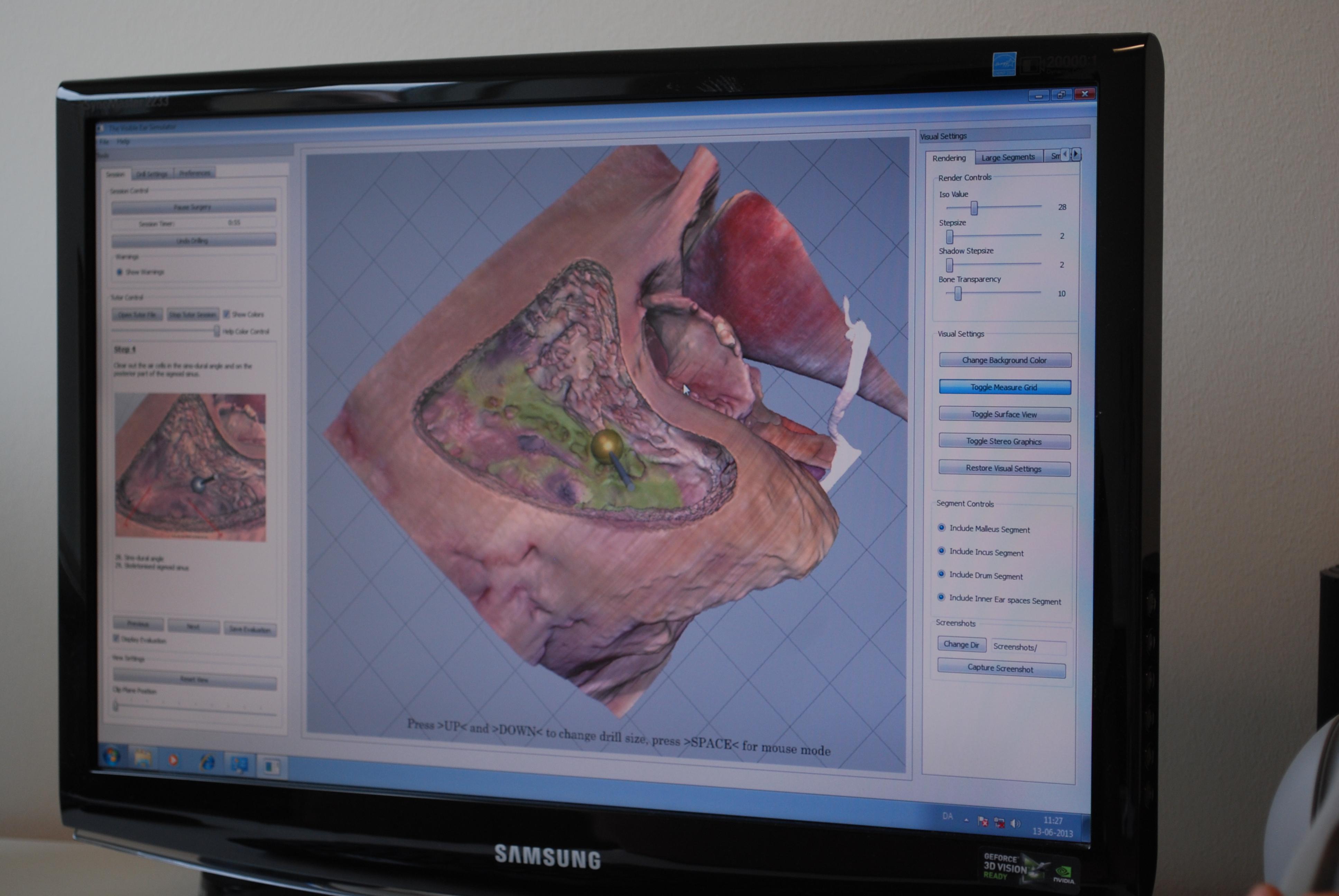 Virtual Ear Surgery